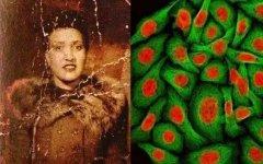 海拉细胞污染事件揭秘:注射癌细胞人体实验(骇人听闻)