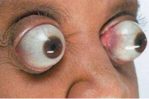 世界上眼球最突出的女人,金·古德曼(眼睛凸出11毫米)