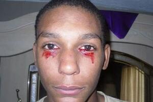 美国15岁流血泪的少年,眼睛每天流血三小时(超恐怖泪血症)