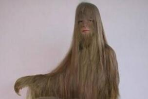 世界上体毛最长的人,艾米丽·苏珊(脱毛后是个大美女)